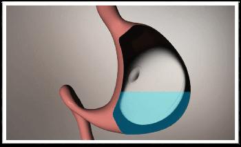 Nouvelle technique sans chirurgie, le ballon gastrique